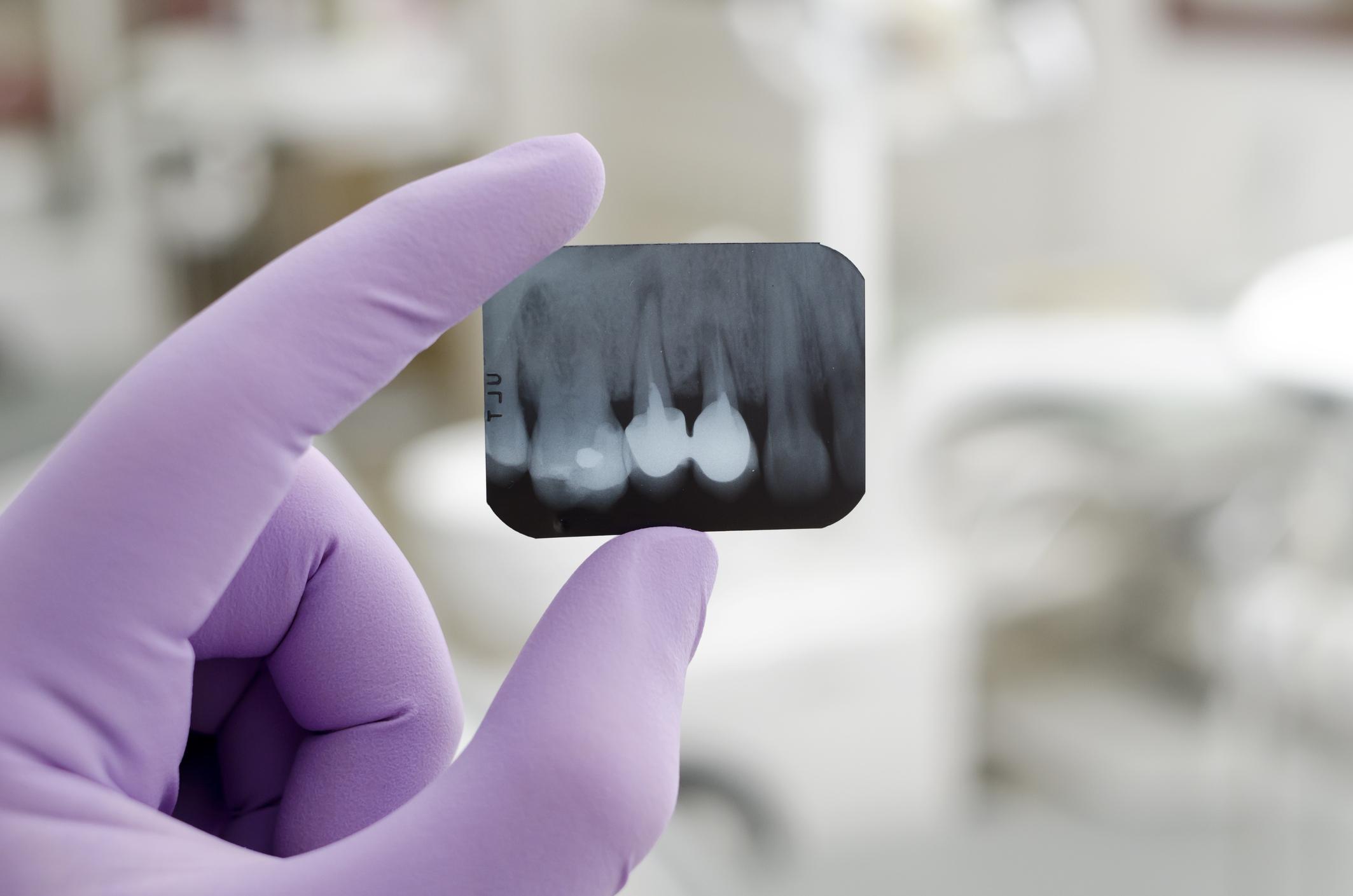 Detalhe de mão com luva segurando radiografia odontológica